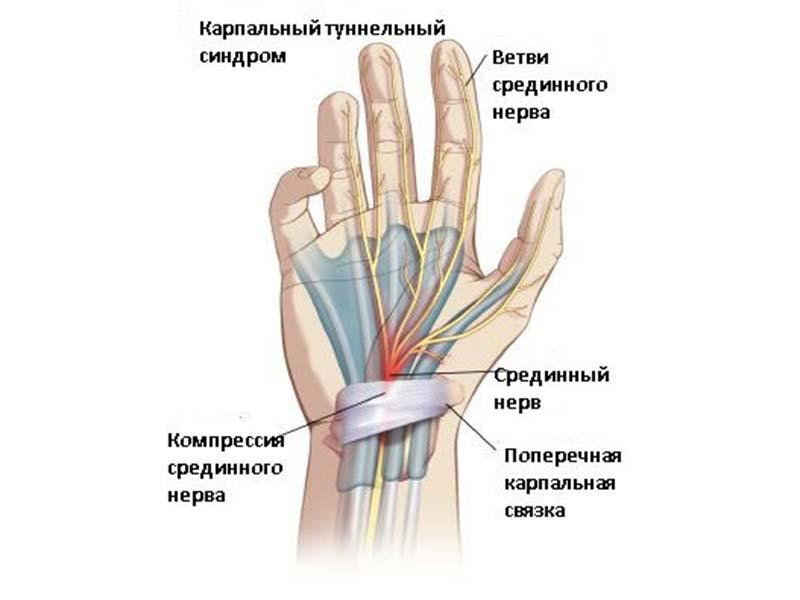 Немеют руки во время сна заболевания